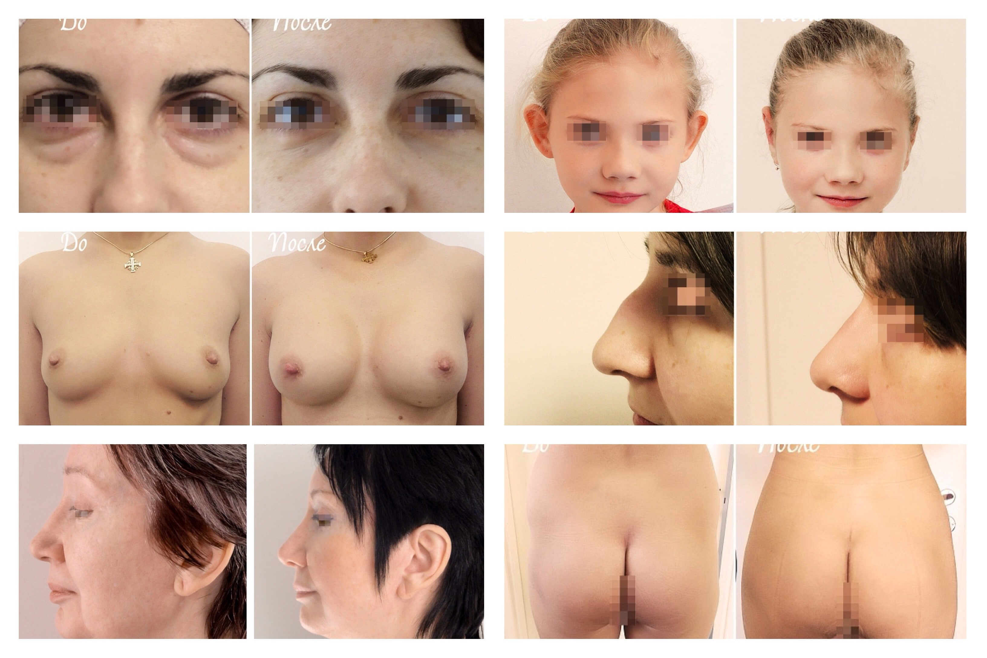 Plastic surgery in Moscow, Russia